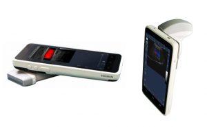 Портативный ультразвуковой сканер УЗИ MU3